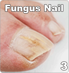 fungal nails uae