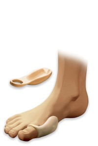 Silicone Bunion Shield