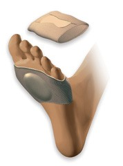 Silicone Elasticated Metatarsal Pad